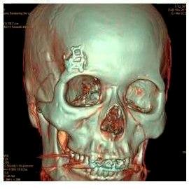 Плюс хирургии замочной скважины в том, что минимально травмируется череп, не нужно полностью брить голову и восстанавливаться после лечения занимает неделю