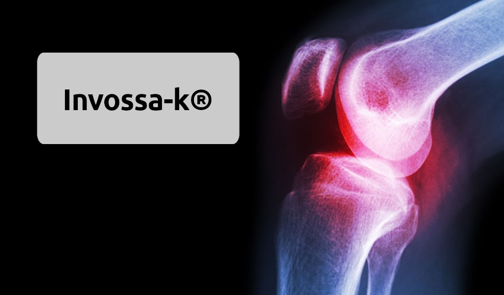 Лечения артрита коленного сустава стволовыми клетками Invossa‑k®