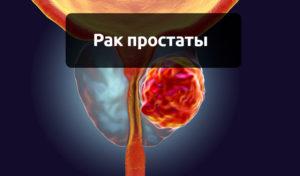 Общая информация про рак простаты