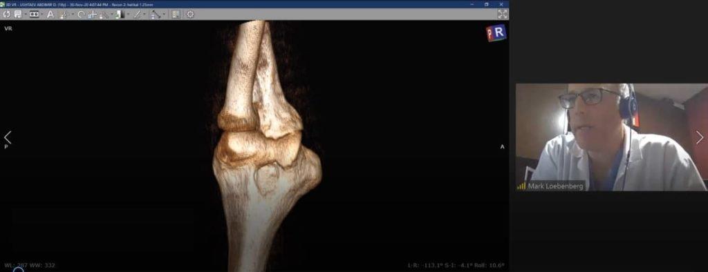 Онлайн-консультация израильского ортопеда по травме локтя кт модель