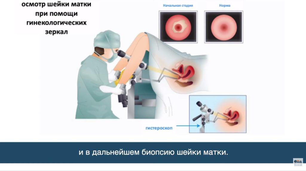 Лечение рака шейки матки в Корее. Интервью корейского врача