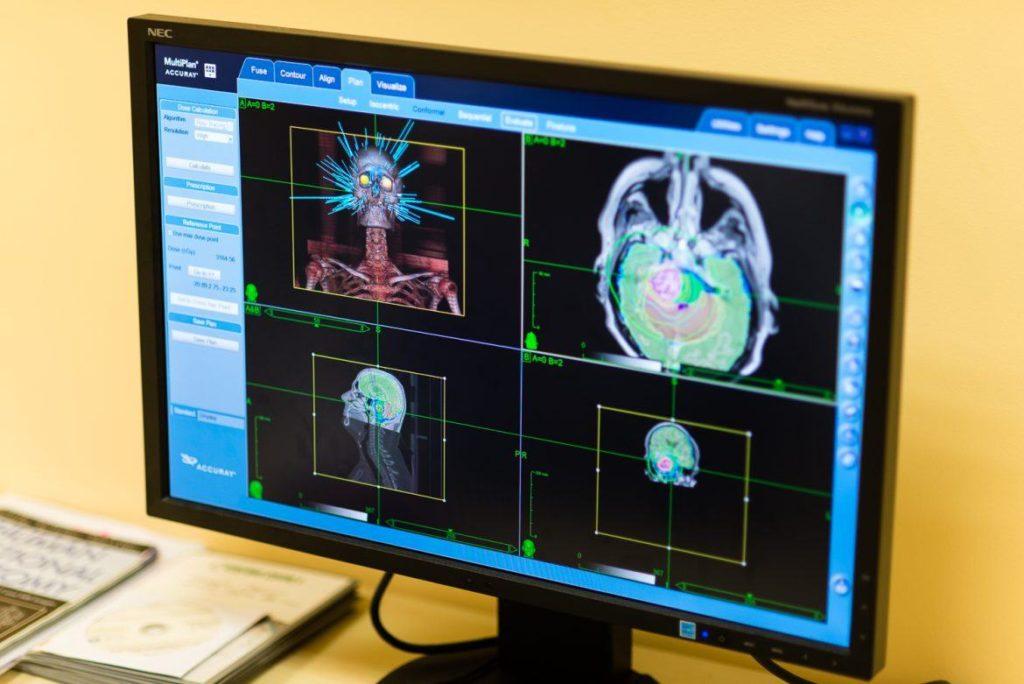 Лечение киберножом за границей: радиохирургия в онкологии и нейрохирургии, насколько это безопасно, как проходит лечение