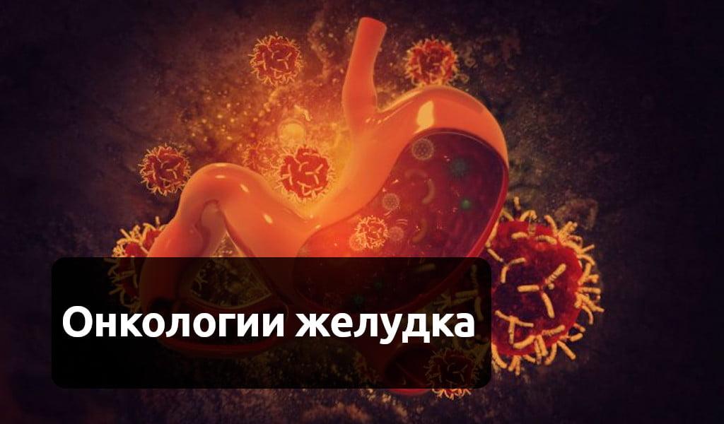 Рак желудка: первые симптомы, признаки у женщин и мужчин