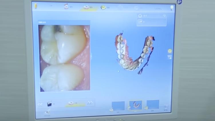 Снимки зубов с помощью 3d сканера. Эти снимки преобразуют в изображения и процесс восстановления зубов выполняется сначала виртуально