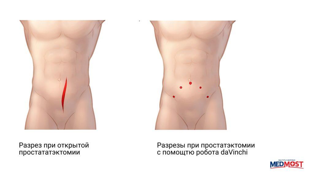 Сравнение швов при раке простаты