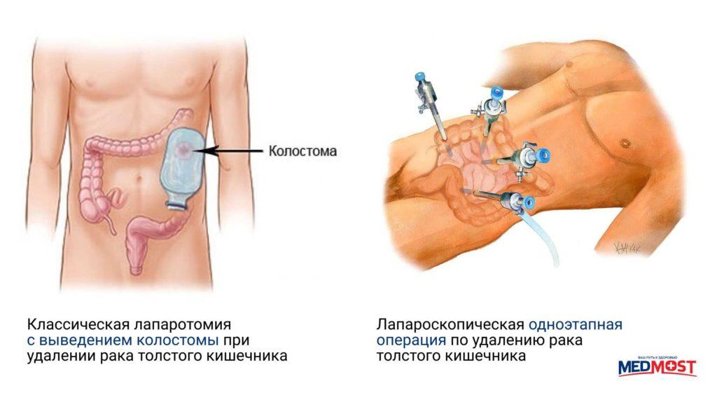 сравнений операций при раке кишечника